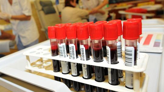Na zdjęciu: probówki laboratoryjne w trakcie badania